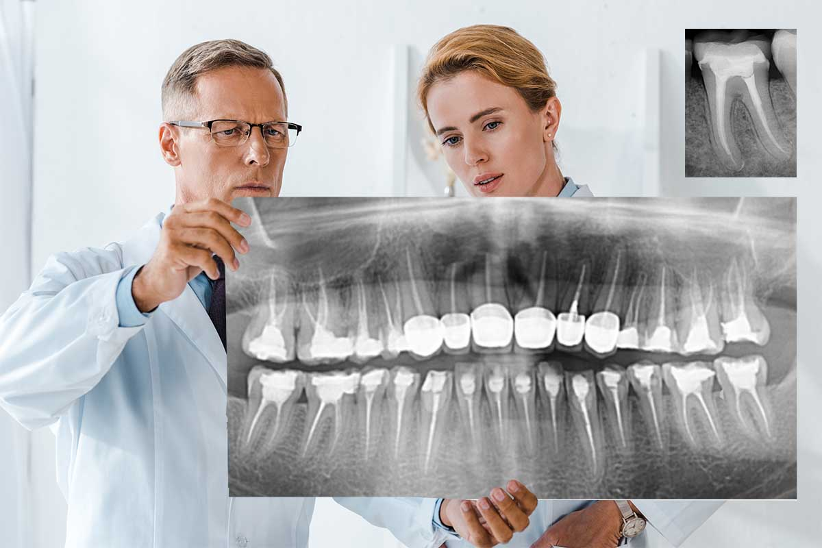 TMJ Treatment may Start by Reviewing X-Rays of Teeth & Jaw