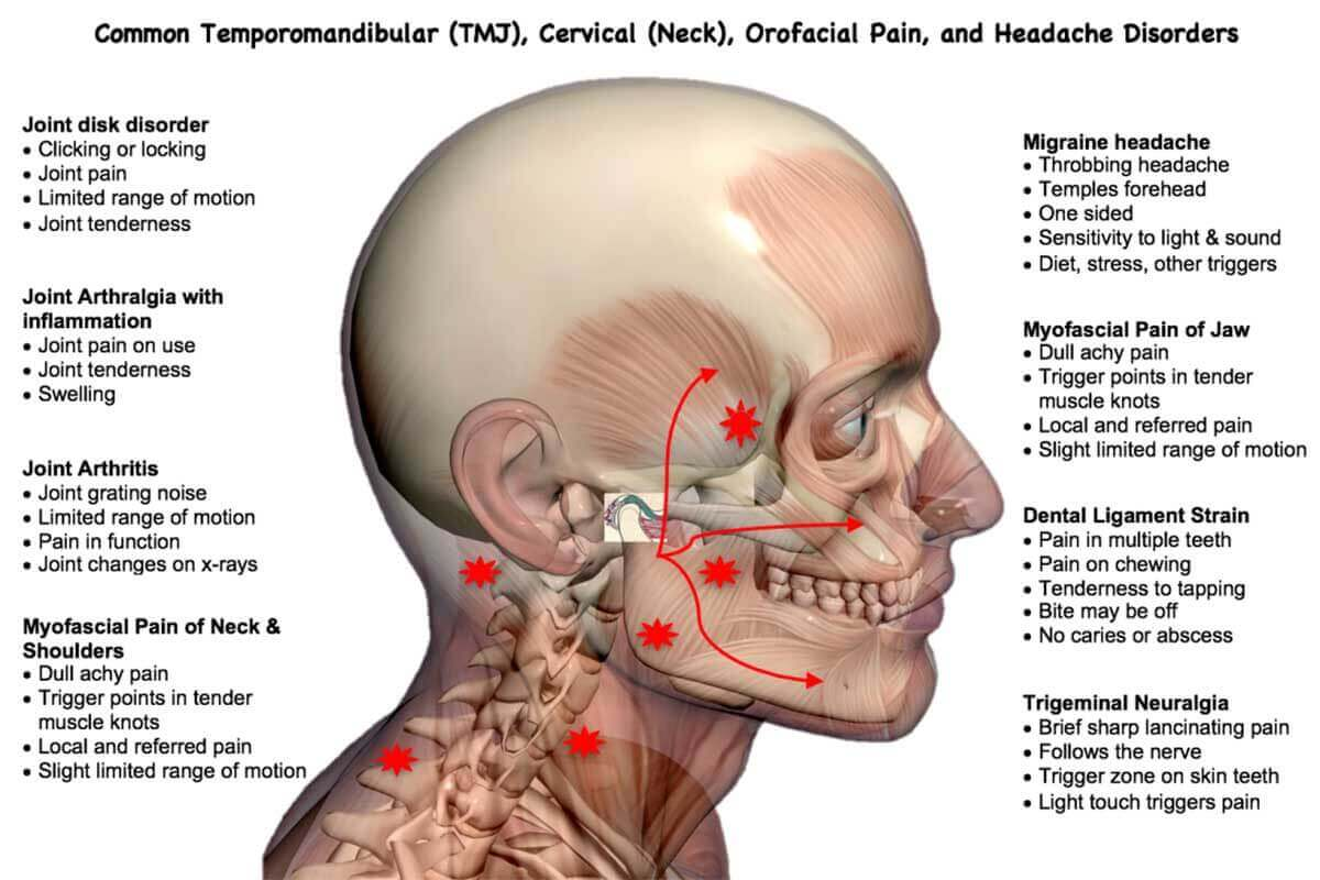 Common TMJ, neck, orofacial pain issues