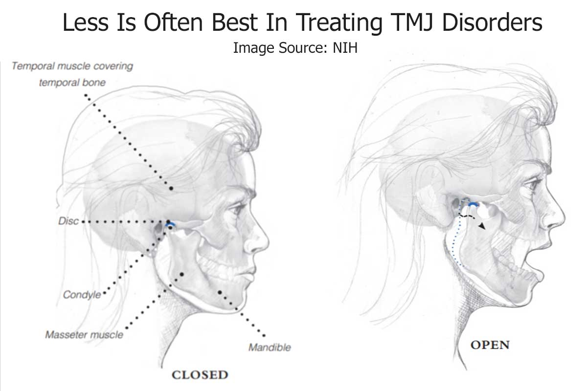 Non-surgical TMJ Treatment Looks to Treat Underlying Causes
